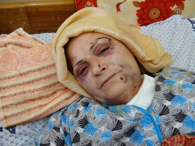 Fatima was at her front door when a drone struck, killing her niece and grand-daughter, and injuring her two sons and a grandson. She has shrapnel embedded in her head, face, neck and all over her body.